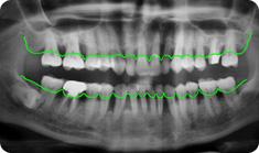 periodontics3
