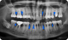 periodontics5