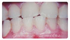 dark-gums01