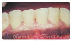 dark-gums02