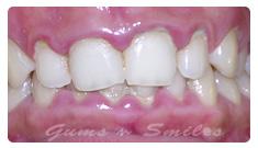 inflamed-gums