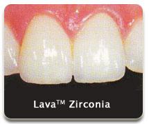 lava02