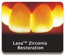 lava04