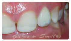 teeth-hour-1hour