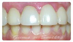 tooth-veneers-after03-final