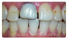 tooth-veneers-after03