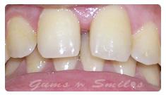 tooth-veneers-before02