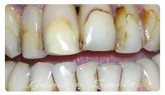 tooth-veneers-before03