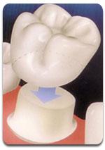 cap-dental