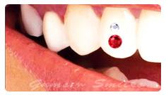tooth-jewellery01