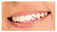 tooth-jewellery03