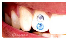 tooth-jewellery04