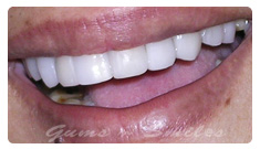 tooth-veneers-after01