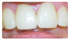 tooth-veneers-after02