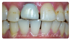 tooth-veneers-after03