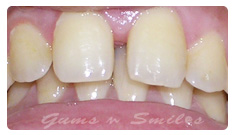 tooth-veneers-before02